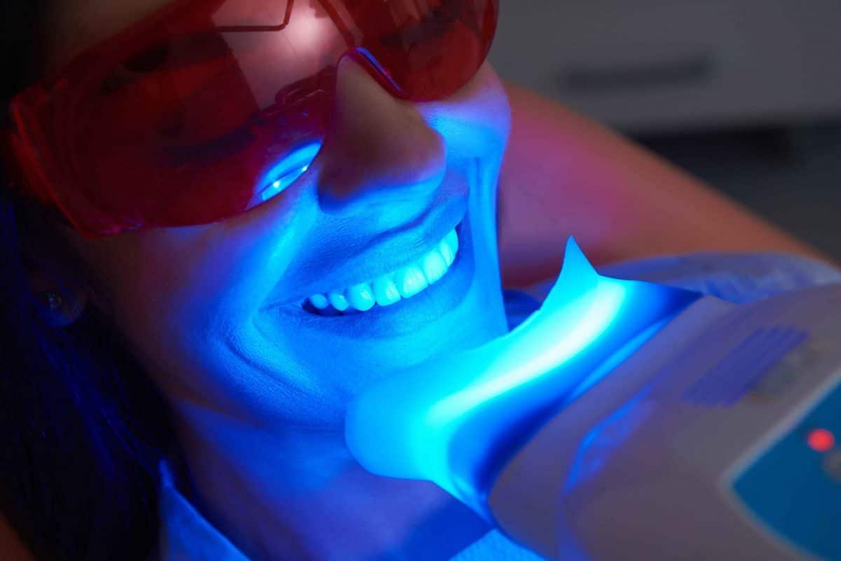 Blanchissement de dent : voici les aliments qui vous permettent de vous blanchir les dents!