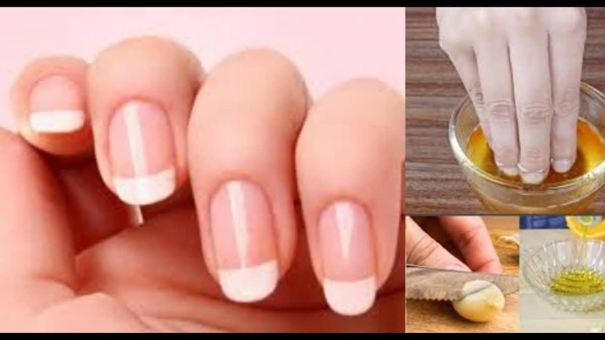 Astuce manucure : découvrez comment faire pousser vos ongles rapidement