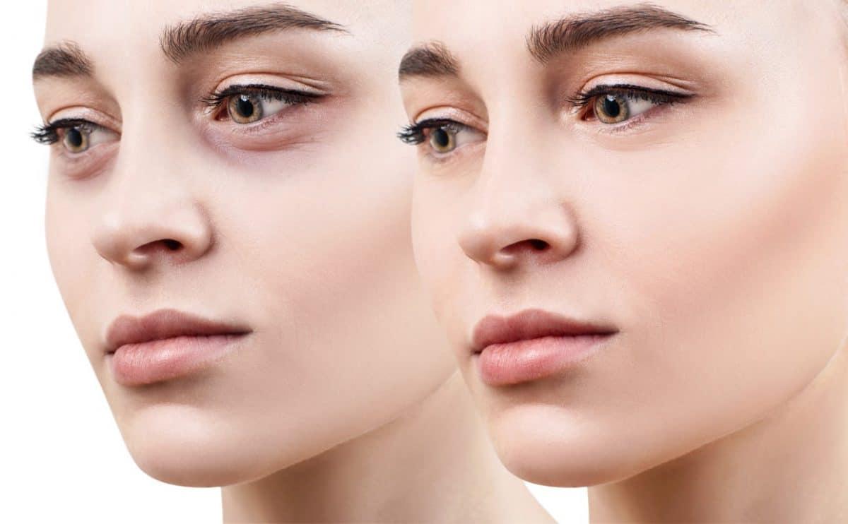 Astuce beauté : quelques astuces naturelles pour faire partir les cernes du visage !