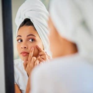 Astuce beauté : Quelques solutions pour vous aider à éliminer les boutons de votre visage !